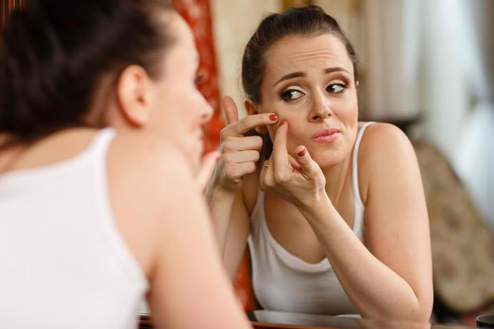 H4-teen-acne